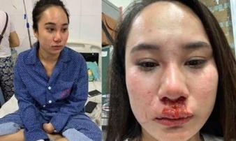 Cô gái bị 'đánh ghen', lột đồ ở Hà Nội: Do cạnh tranh bán hàng online?