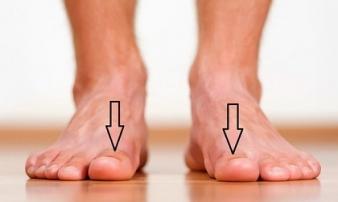 Bàn chân xuất hiện cùng lúc 3 dấu hiệu này: Cảnh báo thận đang 'kêu cứu' gấp, hãy đi kiểm tra ngay