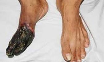 'Món' cả chục triệu người đang mê mẩn là thủ phạm gây ra bệnh chân khô như... gỗ