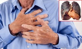 5 dấu hiệu chứng tỏ ung thư phổi đã 'tấn công' cơ thể, nhanh chân đi khám ngay