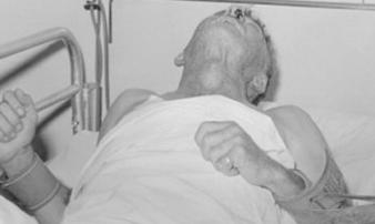 Căn bệnh đáng sợ, đã mắc phải là tử vong: Bác sĩ khuyên bạn điều này
