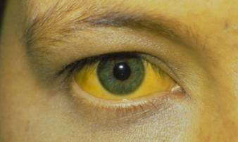 Ngủ dậy thấy 3 dấu hiệu này có thể là gan đang 'báo động': Hãy khẩn trương kiểm tra