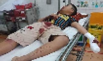 Pháo tự chế phát nổ trên tay thiếu niên 14 tuổi