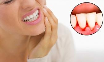 Chảy máu chân răng là lời cảnh báo bạn đang đối diện với căn bệnh nguy hiểm, chớ coi thường