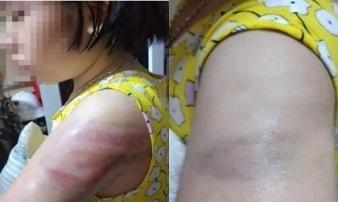 Bé gái lớp 4 bị cô giáo đánh bầm tím cánh tay do viết bài chậm