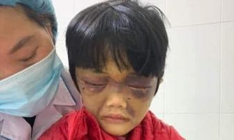 Điều tra vụ bé gái 6 tuổi bị mẹ đẻ đánh tới nhập viện ở Hải Dương