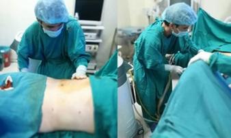 Một phụ nữ 50 tuổi tử vong sau khi hút mỡ bụng 3 ngày