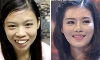 Sự thay đổi của cô gái 26 tuổi khiến người ta xúc động