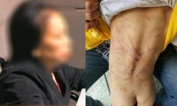 Cô bé 4 tuổi bị bà ngoại kế 'dạy bảo' đến toàn thân chằng chịt vết thương rớm máu