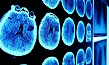6 dấu hiệu cảnh báo chính xác bệnh u não, hãy khám ngay khi thấy có biểu hiện kẻo cứu chẳng kịp