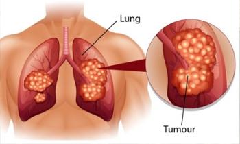 Dấu hiệu điển hình của bệnh ung thư phổi