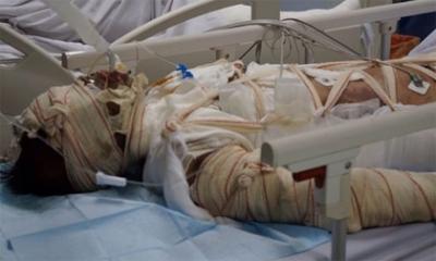 Xót xa người mẹ trẻ nguy kịch vì lao vào nhà cháy cứu 2 con