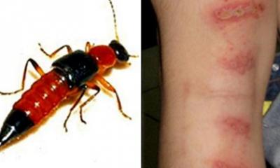 Cách phân biệt bệnh Zona và kiến ba khoang đốt để tránh những nguy hiểm chết người