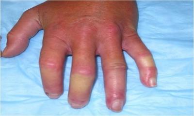 10 dấu hiệu của một người đang rơi vào tình trạng bệnh nguy hiểm