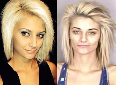 Cựu hoa hậu Jame Lynn trước và sau khi bị bắt