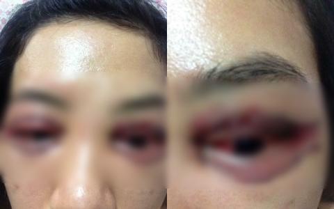 Vụ cô gái đi cắt mí mắt gây xôn xao MXH: Khi cô gái đến làm việc, chủ spa hỏi sao lại bêu xấu hình - Ảnh 1.