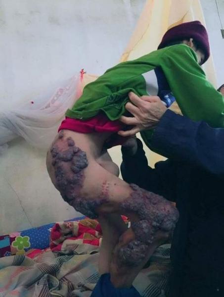 Cuộc đời nghiệt ngã của đứa trẻ có mẹ bị cha sát hại - 1