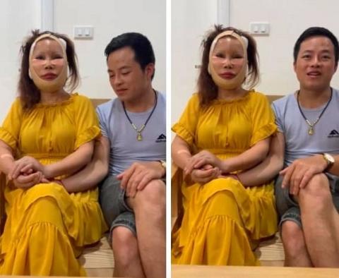 Diện mạo mới của cô dâu 62 tuổi ở Cao Bằng sau 3 ngày khiến dân mạng khiếp vía vì hậu phẫu căng da mặt - Ảnh 1.