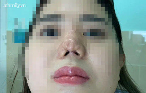 TP.HCM: Cô gái 22 tuổi suy sụp tinh thần, uống 30 viên thuốc tự tử vì bị bác sĩ thẩm mỹ 'dỏm' phá nát mũi - 2