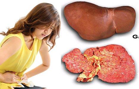 Dấu hiệu bạn mắc bệnh gan giai đoạn nặng