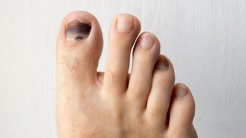Móng chân bị tím đen đổi màu