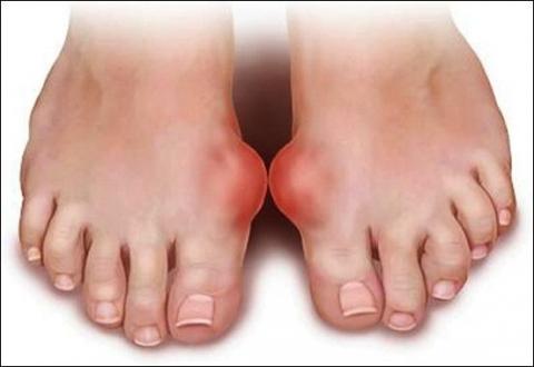 Khớp chân bị sưng cần đi khám