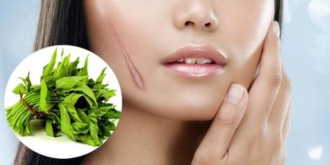 Người có vết sẹo chưa lành không nên ăn rau muống