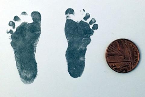 Sinh con chỉ nặng hơn 600gr, cặp vợ chồng được khuyên từ bỏ hy vọng nhưng vài năm sau, đứa trẻ khiến bác sĩ sốc toàn tập - Ảnh 3.