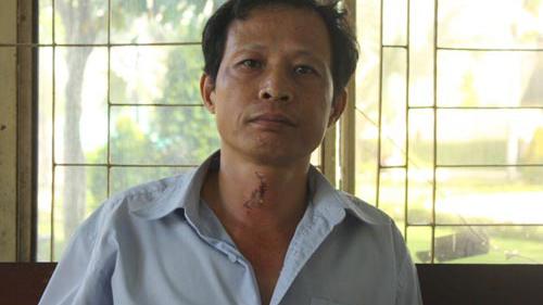 Vụ gia đình bị tạt a xít: Gia đình nạn nhân gửi đơn cầu cứu
