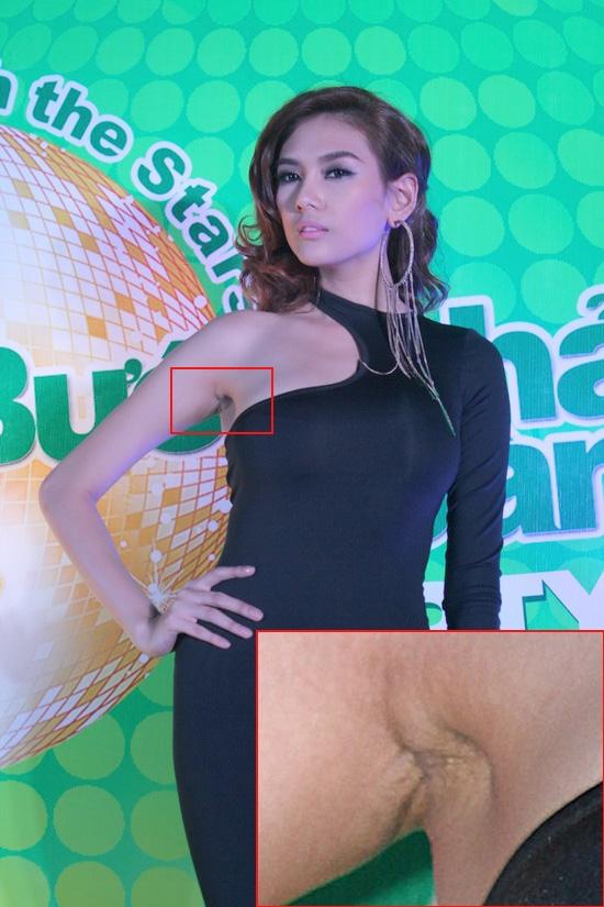 Mỹ nhân Việt lộ sẹo 'nâng cấp' vòng 1
