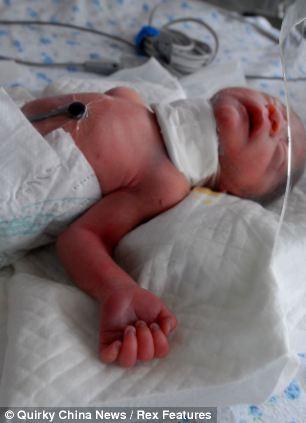 Bé sơ sinh bị cắt cổ vẫn sống sót kỳ diệu