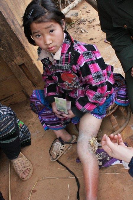 Bé gái 3 năm sống với cái chân lúc nhúc giòi