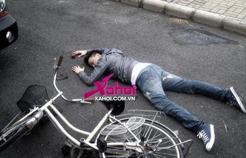 Cao Thái Sơn mặt nát bươm vì 'tai nạn', chia tay showbiz?