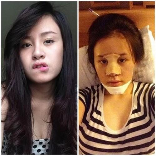 Bà Tưng phẫu thuật thẩm mỹ vì Angela Phương Trinh?