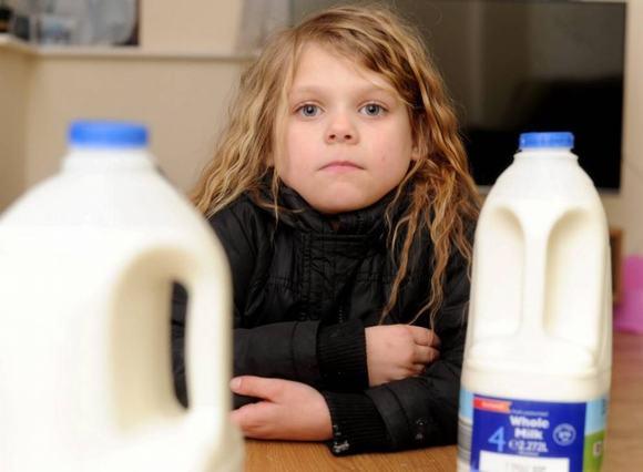 Nhập viện vì uống sữa Iceland chứa keo móng tay giả