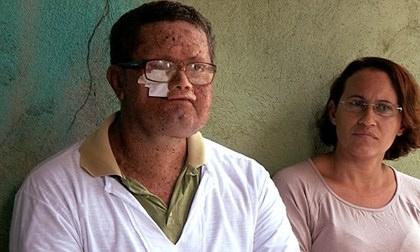 Brazil: Cả thị trấn mặt biến dạng vì mắc bệnh lạ
