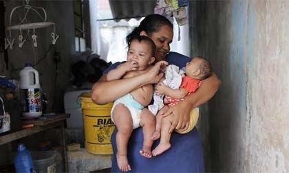 Bí ẩn trường hợp sinh đôi nhưng chỉ một bé nhiễm virus Zika