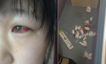 Nhiễm độc từ bàn học Trung Quốc, mắt học sinh đỏ như ma cà rồng