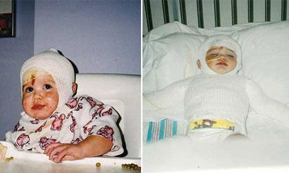 Cô bé đáng thương bị chính mẹ ruột nhẫn tâm ném vào lò nướng 14 năm trước bây giờ ra sao?