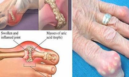 Loại thực phẩm tốt nhất loại bỏ độc tố ra khỏi cơ thể nhằm ngăn chặn gout và đau khớp