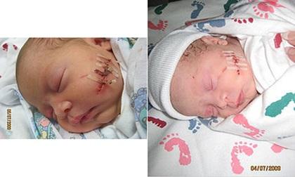 Tai nạn kinh hoàng đối với trẻ sinh mổ khi bị bác sĩ rạch trúng đầu, mặt