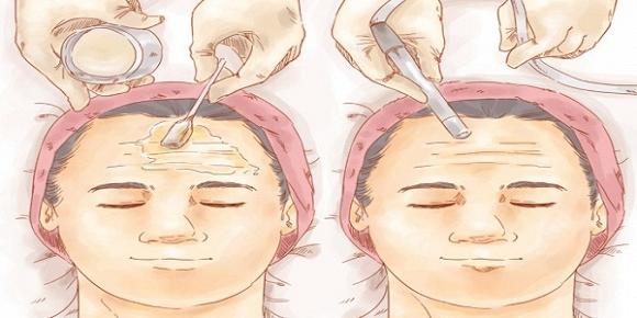 Thói quen phụ nữ nào cũng mắc gây ra nếp nhăn trên khuôn mặt