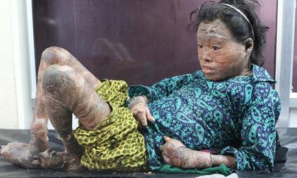 Cảnh đời bất hạnh của cô bé 13 tuổi mắc bệnh lạ khiến da khô như vảy cá