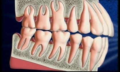 Chớ xem nhẹ bệnh nướu răng