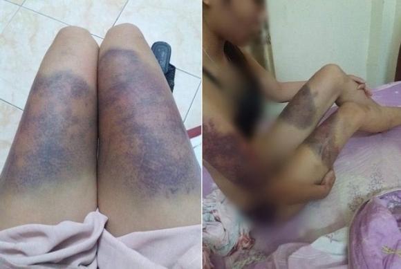 Hình ảnh cô gái mang trên mình đầy vết thương thâm tím tố bị bạn trai hành hung. (Ảnh: Facebook).