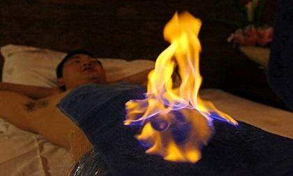 Kỳ bí phương pháp chữa bệnh bằng lửa tại Trung Quốc