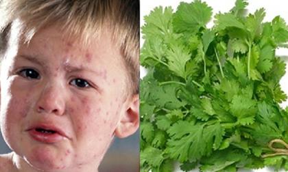 Rau mùi - thần dược chữa bệnh thủy đậu mà ai ai cũng cần giắt lưng
