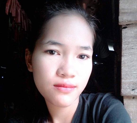 Thiếu nữ 18 tuổi bị phá hủy khuôn mặt sau khi nhổ 1 chiếc răng và đây là nguyên nhân - Ảnh 2.