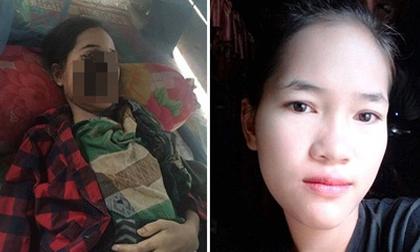 Thiếu nữ 18 tuổi bị phá hủy khuôn mặt sau khi nhổ 1 chiếc răng và đây là nguyên nhân