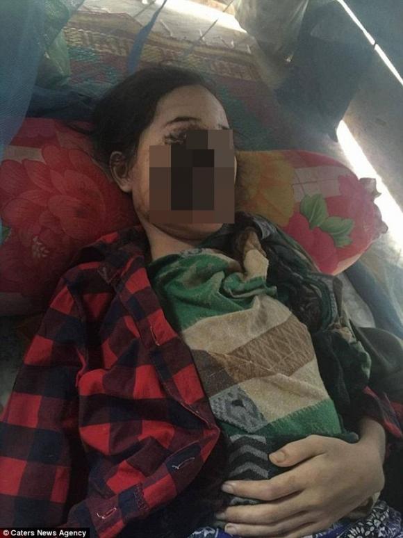 Thiếu nữ 18 tuổi bị phá hủy khuôn mặt sau khi nhổ 1 chiếc răng và đây là nguyên nhân - Ảnh 1.